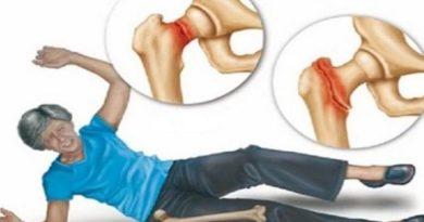 Nije mogao da ustane iz kreveta od bolova: Oporavio kosti i zglobove za 10 dana SAMO JEDNOM NAMIRNICOM!